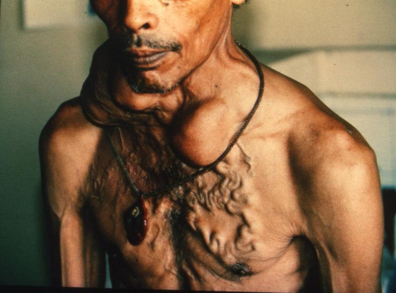thyroid endocrine disease bugswong