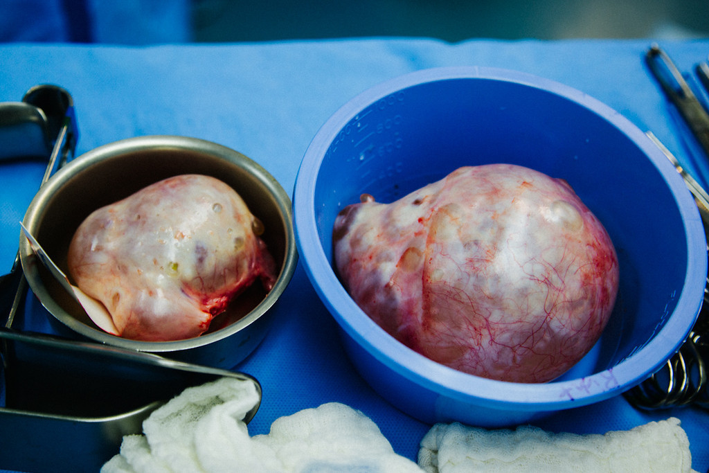Two large ovarian cysts were removed from a patient. Photographed on assignment for Portland Magazine.