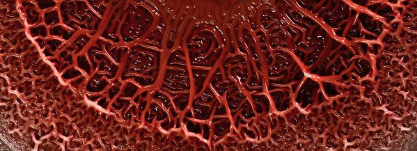 Pseudomonas aeruginosa colony biofilm No. 1B