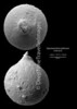 "Pygmaeoseistron globosum, Late Rupelian, ""Couches à Mélettes""<br /> <br /> drilling Allschwil-2, near Basel, Switzerland"
