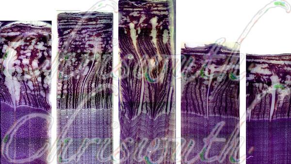 Wood & bark (phloem) annuals increments