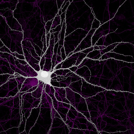 YFP tagged neurons in culture. ⠀