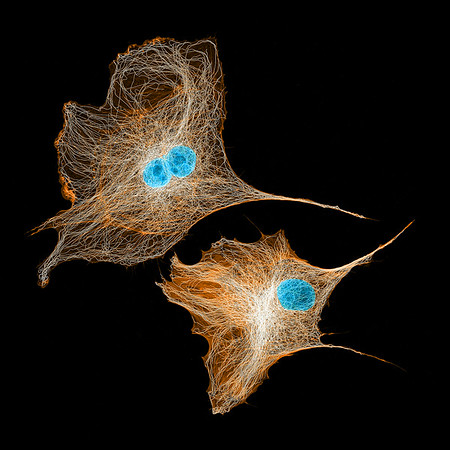 More microtubules in BPAE cells!⠀