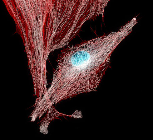Microtubules in BPAE Cells