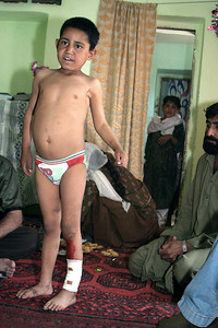 One of the first families we met with was the home of a young boy, Ehsanullah Nasrullah, who was severely injured by a cluster bomb.