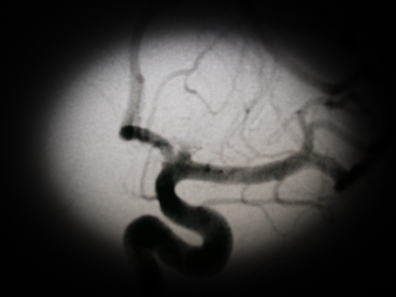 "<p class=""kbd_p""><i>Angiogram showing the rupture</i></p>  <p class=""kbd_p""><b>Wednesday 10/13, 9:30 AM - Day 1</b></p>  <p class=""kbd_p"">We arrive at UC hospital and Gina is taken for the angiogram within 15 minutes.</p>  <p class=""kbd_p""><b>Wednesday 10/13, 11:50 AM - Day 1</b></p>  <p class=""kbd_p"">Dr. Tew meets with me to discuss the angiogram results. Due to the location and size, the coiling approach is not an option. The only option is to do the pervasive external surgery which I authorize. They basically make an opening on the side of the skull, lift the brain, and place clips across the aneurysm. Gina is immediately taken to the OR for the operation.</p>  <p class=""kbd_p""><b>Wednesday 10/13, 4:45 PM - Day 1</b></p>  <p class=""kbd_p"">Dr. Tew comes into the surgical waiting room and tells us that after some difficulties they were able to clip the rupture. It re-ruptured as soon as they got in and due to the nature of the rupture they had a difficult time clipping it. The assistants were still closing so it would be a while before she was in recovery. During the surgery they had to temporarily stop the blood flow to the left side of her brain 3 times for 6 minutes each time (10 minutes is the max they can go).</p>  <p class=""kbd_p""><b>Wednesday 10/13, 8:00 PM - Day 1</b></p>  <p class=""kbd_p"">I'm allowed to go see her in the neurology intensive care unit (UC is one of the few hospitals that has an intensive care unit just for neurology patients- by the grace of God, Gina got the 8th of the 8 beds they have and two more aneurysms came in the same day (both unfortunately had to be redirected to other facilities). Given the difficulty of the surgery, I would not have wanted to be anywhere else. Gina is able to squeeze a finger with her left hand but that is about the only response at this point.</p>  <p class=""kbd_p""><b>Wednesday 10/13, 10:00 PM - Day 1</b></p>  <p class=""kbd_p"">Gina is moving a little more and able to move her toes on command. She can't open her eyes or do anything else but at least she is in there and still with us. It is impossible to put into words how overwhelming the past 24 hours have been.</p>"