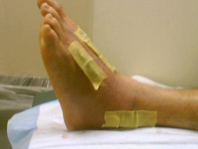 Pete's Broken Foot
