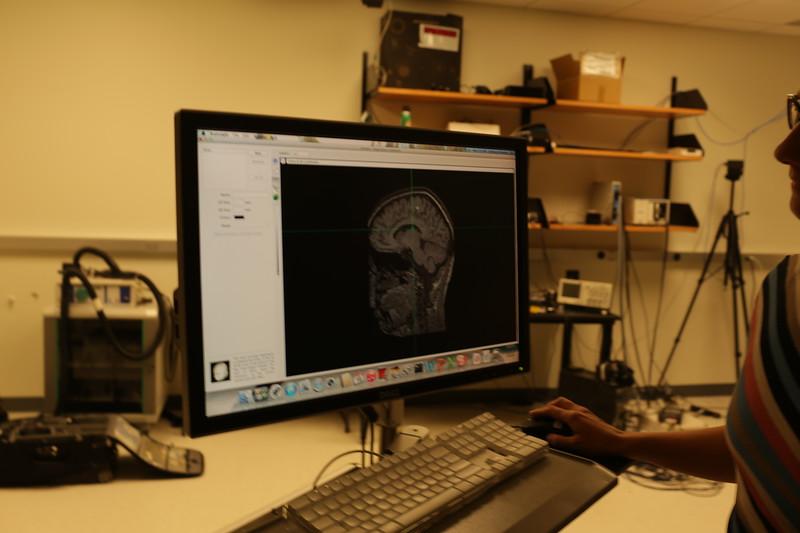Health Science Center<br /> Stroke<br /> WVU Photo/Raymond Thompson