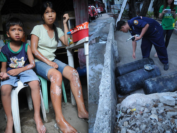 BURNS. Herminia Timblor, 26, and her seven-year-old son Mico show the burns on their limbs when an auto LPG tank delivered to a junkyard located within their neighborhood in Sitio Paglaum, Barangay Calamba, Cebu City, exploded. SFO2 Emiliano Daño (right photo) checks the tanks when firefighters rushed to the scene. (Allan Defensor)