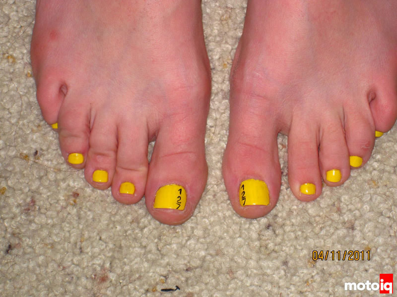 Yellow toenail pedicure