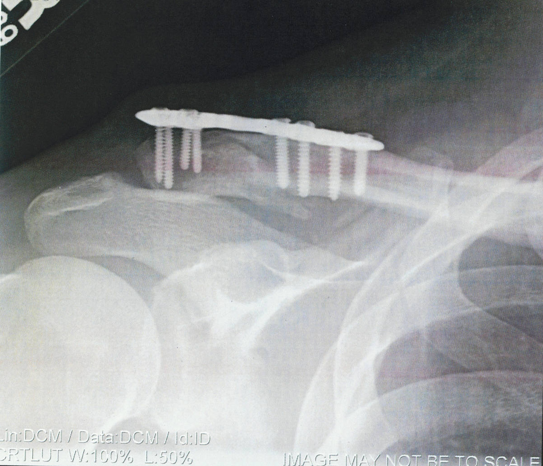 My Plated Clavicle