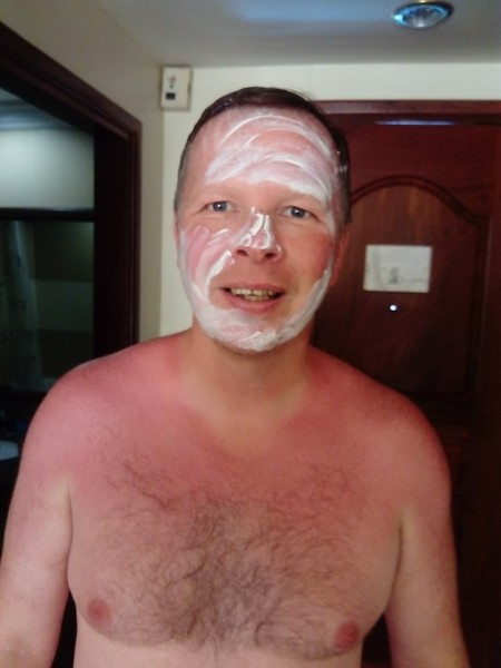 Excessive use of sun tan lotion by Vince Byde.