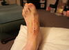 4/4: 18 December 2012 - more surgery, foot this time.....one week on, changing dressings