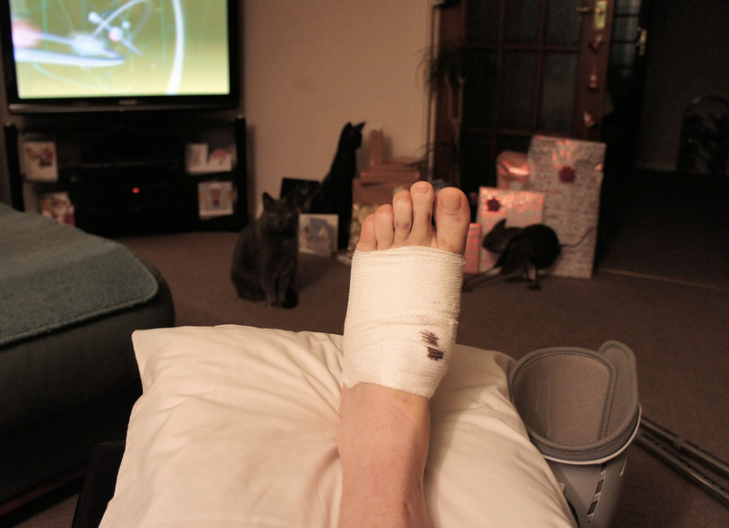 1/4: 18 December 2012 - more surgery, foot this time.....one week on, changing dressings