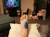 2/4: 18 December 2012 - more surgery, foot this time.....one week on, changing dressings