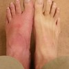 "The left foot is what happened when 3 fire ants decide to ""bite"" you while you set up the hammock"