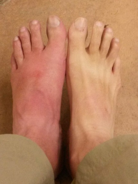 """The left foot is what happened when 3 fire ants decide to """"bite"""" you while you set up the hammock"""