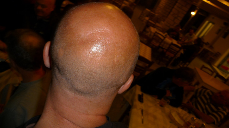 who's bald head is this ?