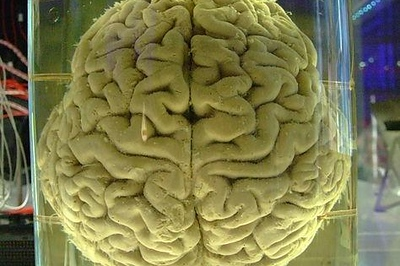 This-is-what-a-sex-addicts-brain-looks-like-S.jpg