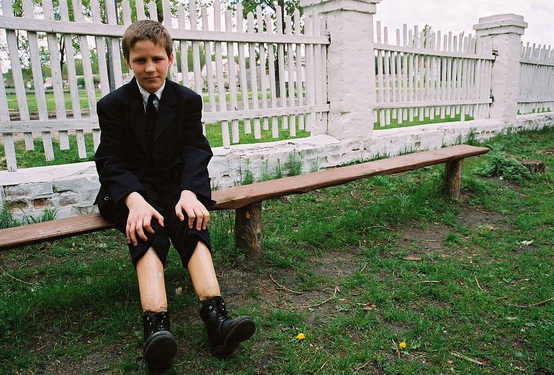"... Peter showed me his two ""wooden"" legs, a result of a tragic accident while on the run from an abusive home life. Just one of the tens of thousands of social orphans in Ukraine at the time. I was able to publish his story. (Olympus Stylus)"