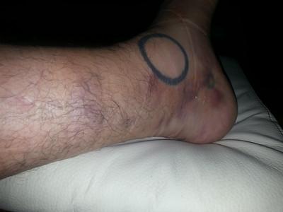 Other Leg