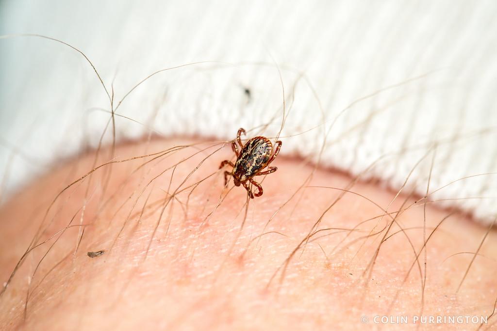 Dermacentor variabilis (American dog tick) on human leg hair