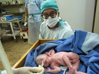 The first baby I delivered by c-section this trip.