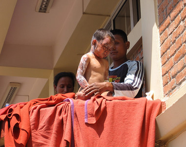 The boy being bathed on the balcony.