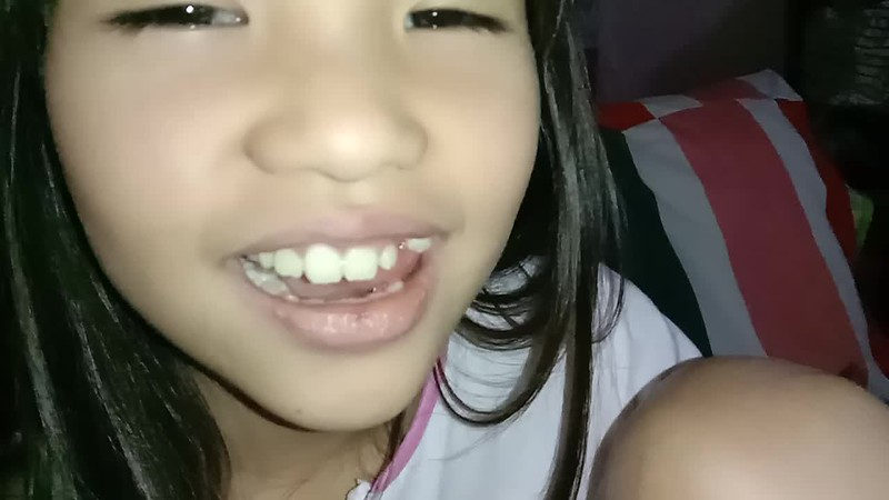 VIDEO of Chin Chin's loose tooth
