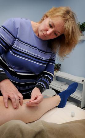 Amesbury: Acupuncturist Lynne Deschenes works on Sheila Thompson of Merrimac to strengthen her immune system. Bryan Eaton/Staff Photo