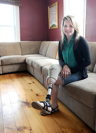 Amesbury: Paige Fortin, who lost the lower half of her leg in a accident last September, at her Amesbury home. Jim Vaiknoras/staff photo