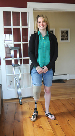 Amesbury: Paige Fortin, who lost the lower half of her leg in a accident last September, at her Amesbury home. Behind her are her crutches she no longer needs. Jim Vaiknoras/staff photo