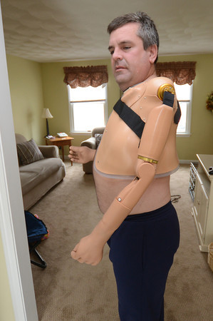 Merrimac: James Young of Merrimac, who lost both his arms in an elecrical accident,  shows his new left arm which he controls with nerve impulses. Jim Vaiknoras/staff photo