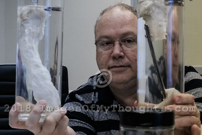 World's First Lab Grown Bone in Tirat Carmel, Israel