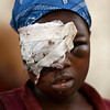 An earthquake survivor sits with part of her face covered by a bandage in Port-au-Prince, Haiti, Thursday, Jan. 14, 2010.  A 7.0-magnitude earthquake struck Haiti Tuesday. (AP Photo/Ricardo Arduengo)