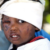Destruction grips Haiti and the Capital Port au Prince Thursday January 14, 2010, the day after an earthquake rattled the country. Three year-old Jean Claude Tracy wears bandages to protect his wounds from the devastating earthquake on Tuesday.  (AP Photo/The Miami Herald, Patrick Farrell)       NO SALES, NO MAGAZINES, NO TV