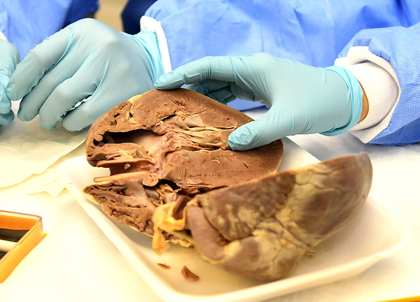 Teenagers check out a dissected pig heart during the Freeman Health Academy on Thursday at Freeman East. <br /> Globe | Laurie Sisk
