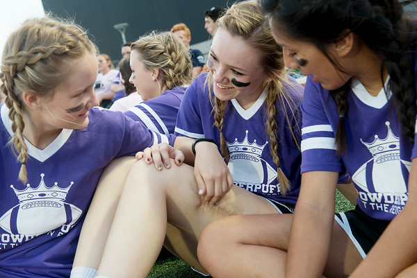 Globe/Roger Nomer<br /> On the sidelines, Emily Huddleston talks with Annie Strickling, left, and Estrella Arreola about her scar. The tornado left Huddleston with a permanent mark, which she sees as a daily reminder of how far she has come.