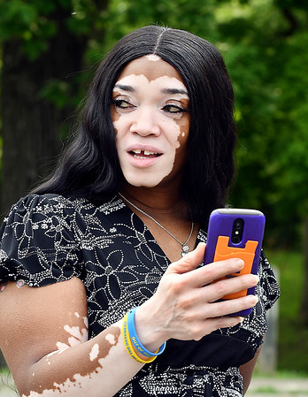 John P. Cleary | The Herald Bulletin<br /> Denise Sawyer Chamberlain wants to empower those afflicted by vitiligo, like her, and educate people about the disease.