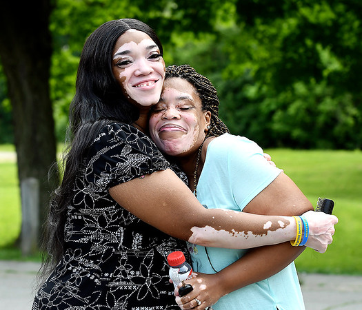 John P. Cleary | The Herald Bulletin<br /> Denise Sawyer Chamberlain gives a big hug to her friend JeNice Bolds who also is afflicted with the disease vitiligo.