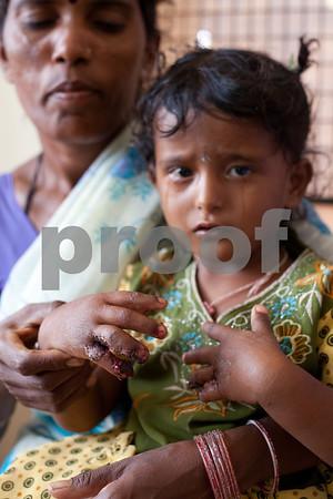 2011_Rotaplast_Nagamangala_India_th_-5035