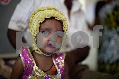 2011_Rotaplast_Nagamangala_India_th_-4928