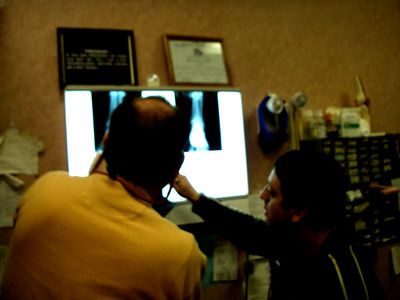 Doc Jeff Daniels and Phil the extern look at another lady's fibular fracture.