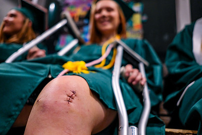 Walking Wounded: Graduating senior Jazlynn Newcomb shows off the sutures from her recent knew surgery.  Despite the operation, she successfully marched in tonight's baccalaureate ceremony.