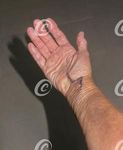 Wrist Surgery Post-Op