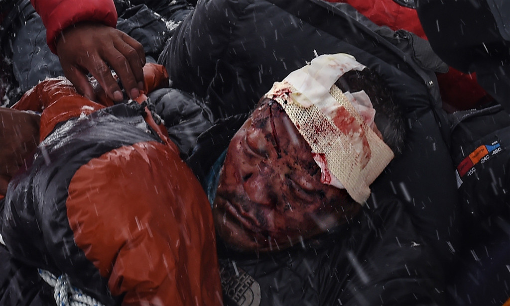 ". In this image released by World Press Photo titled ""Avalanche, 25-27 April, Everest Base Camp, Nepal\"" by photograher Roberto Schmidt for AFP which won second prize Spot News stories category shows a man suffering from severe head trauma being bundled in a sleeping bag used as a makeshift stretcher while being taken by rescuers to a medical tent moments after the avalanche in Nepal, 25 April 2015. (Roberto Schmidt/AFP, World Press Photo via AP)"