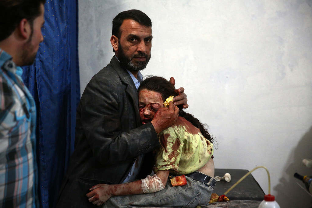 ". In this image released by World Press Photo titled ""Douma\'s Children, Syria\"" by photographer Abd Doumany for AFP which won the second prize in the General News stories category shows a wounded Syrian girl holding on to a relative as she awaits treatment by doctors at a makeshift hospital in Douma, Syria, May 11, 2015. (Abd Doumany/AFP, World Press Photo via AP)"