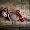 APTOPIX Myanmar Malnourished Rohingya