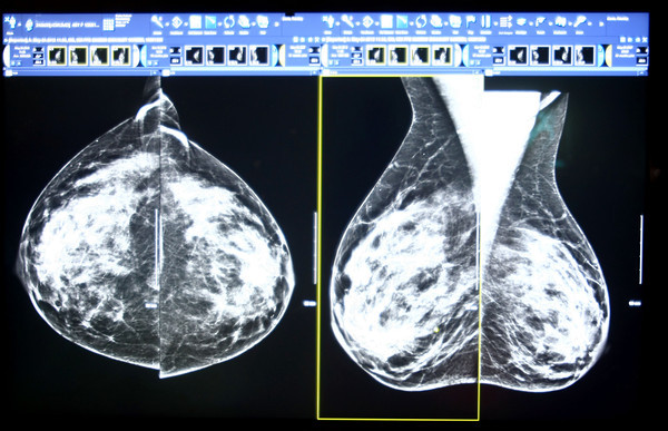 7-25-13  --  Radiologist Dr. Tim Davis reading mammograms at St. Joseph Hospital.<br />   KT photo | Tim Bath