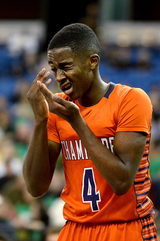 . Chaminade\'s Michael Oguine reacts after getting hit in the eye against Sir Francis Drake. (Photo by Michael Owen Baker/L.A. Daily News)